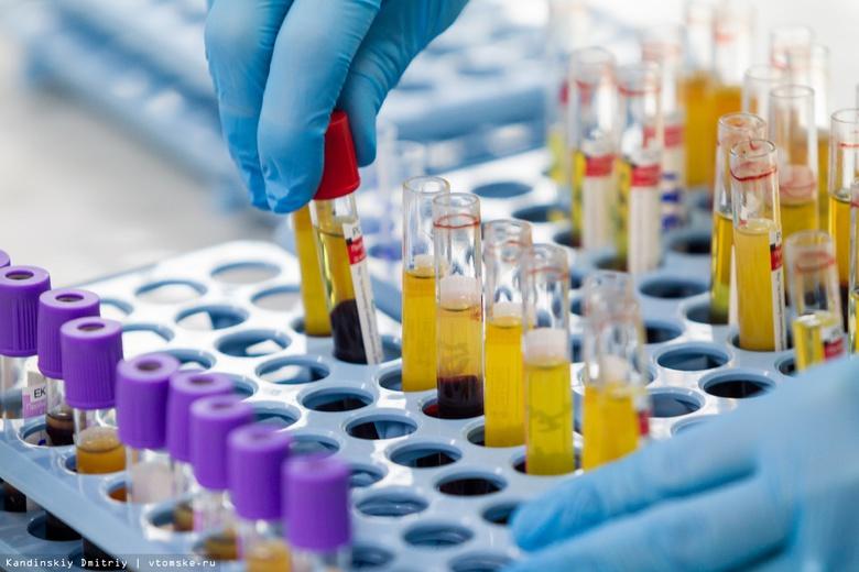 Почти 8 тыс жителей Томской области заражены ВИЧ