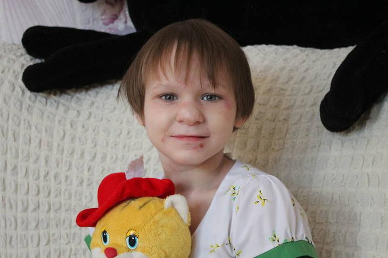 Томичей просят помочь 11-летней девочке c эпилепсией