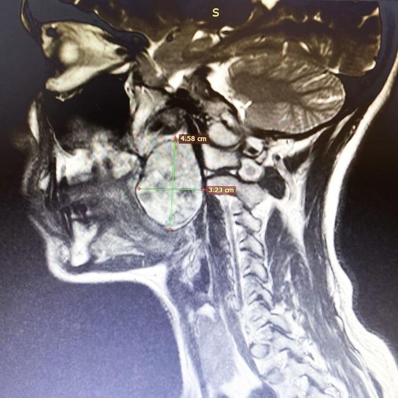 Опухоль глотки размером с куриное яйцо удалили мужчине томские хирурги