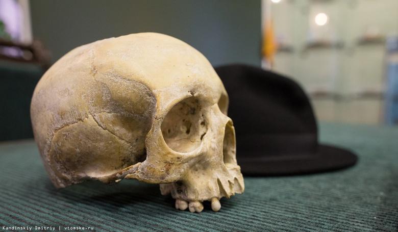 В Томске создали имплантат, выращивающий челюстную кость взамен утраченной